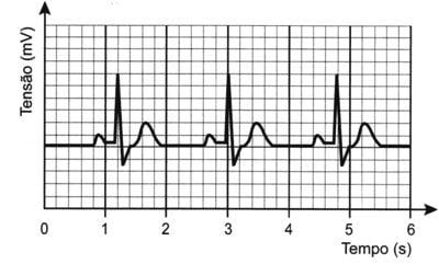 Enem 2016 cobra questão sobre frequência cardiáca
